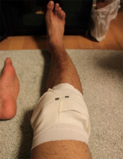 膝怪我してた時の写真